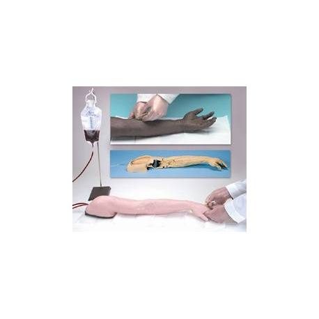 Advanced Injection Arm - White